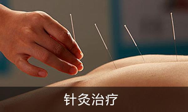 神农中医馆针灸治疗